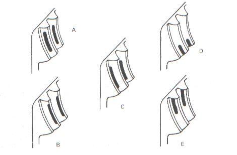 Huellas típicas del contacto del piñón de ataque con la corona.